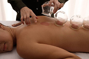 Suction Cupping Gold Coast